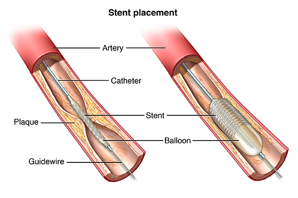 Angioplasty and Stent Placement for the Heart | Johns