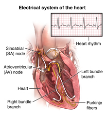 Pacemaker Insertion | Johns Hopkins Medicine