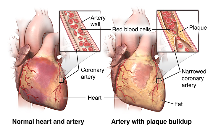 The heart and arteries, showing plaque build-up in arterial wall