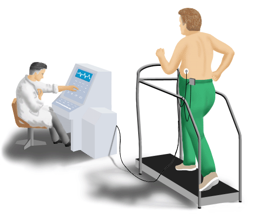 Illustration demonstrating an exercise ECG