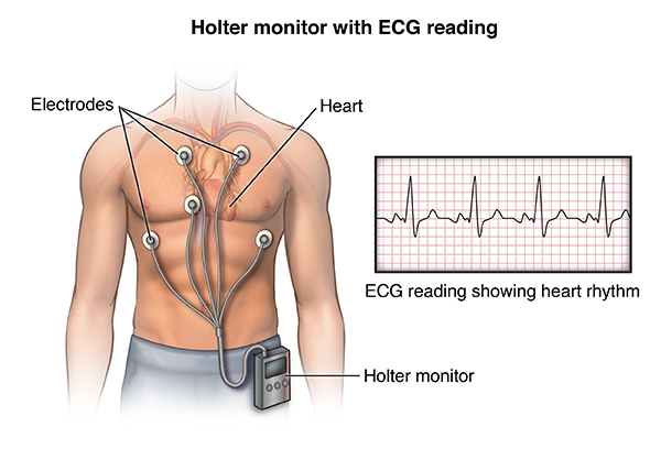 An illustration of the holter monitor device on a human body