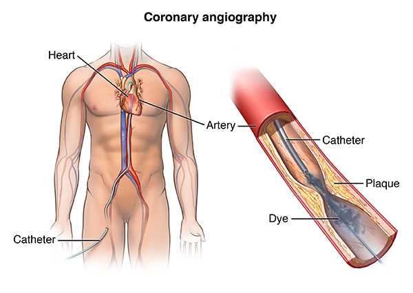 Cardiac Catheterization | Johns Hopkins Medicine