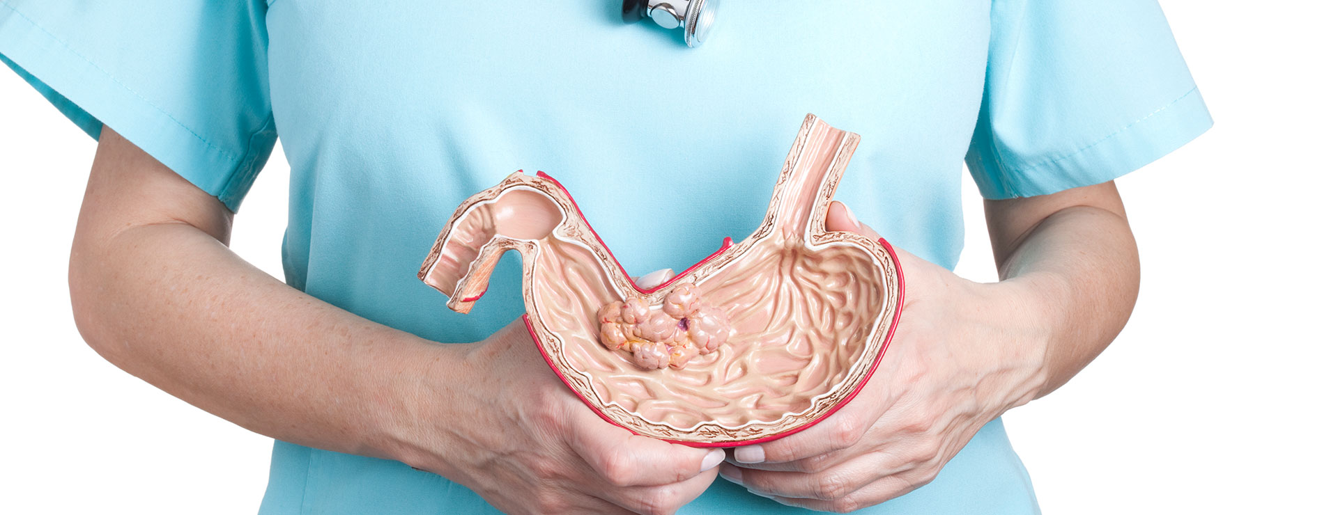 doctor holding a model of a stomach