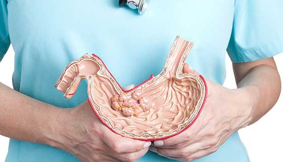 A doctor holds up an anatomical model of a stomach.