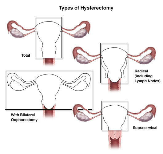 Types of hysterectomy