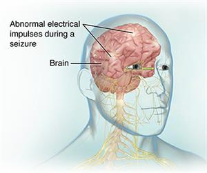 Electroencephalogram (EEG) | Johns Hopkins Medicine