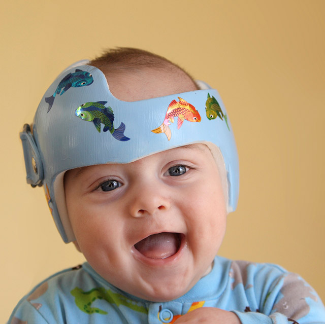 Smiling baby wearing a helmet