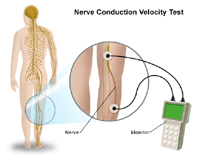 An illustration of a nerve conduction velocity test