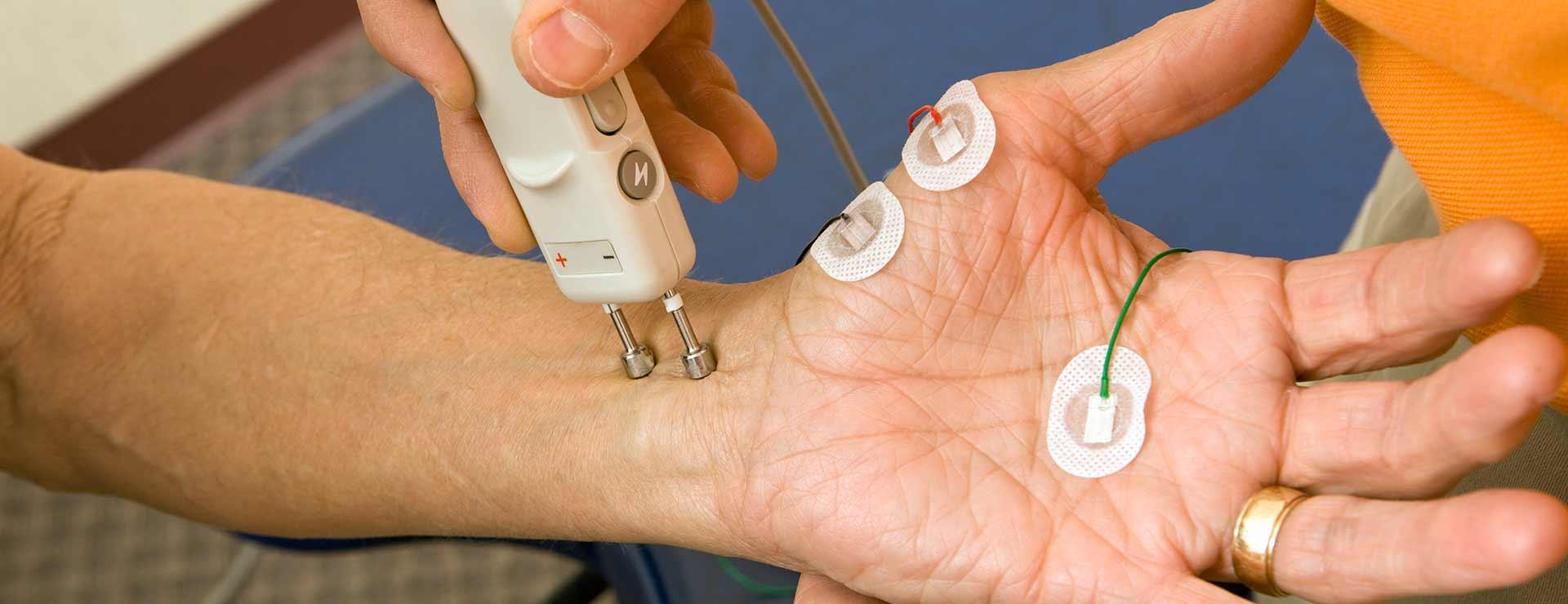 Nerve Conduction Studies | Johns Hopkins Medicine