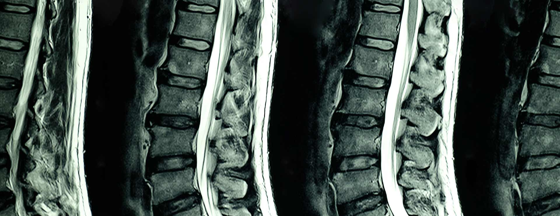 Lumbar Puncture | Johns Hopkins Medicine