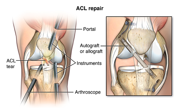 Illustration of ACL repair surgery