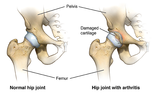 Diagram showing a normal hip joint compared to a hip joint with arthritis, which has damaged cartilage