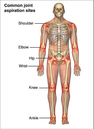 Reactive Arthritis | Johns Hopkins Medicine