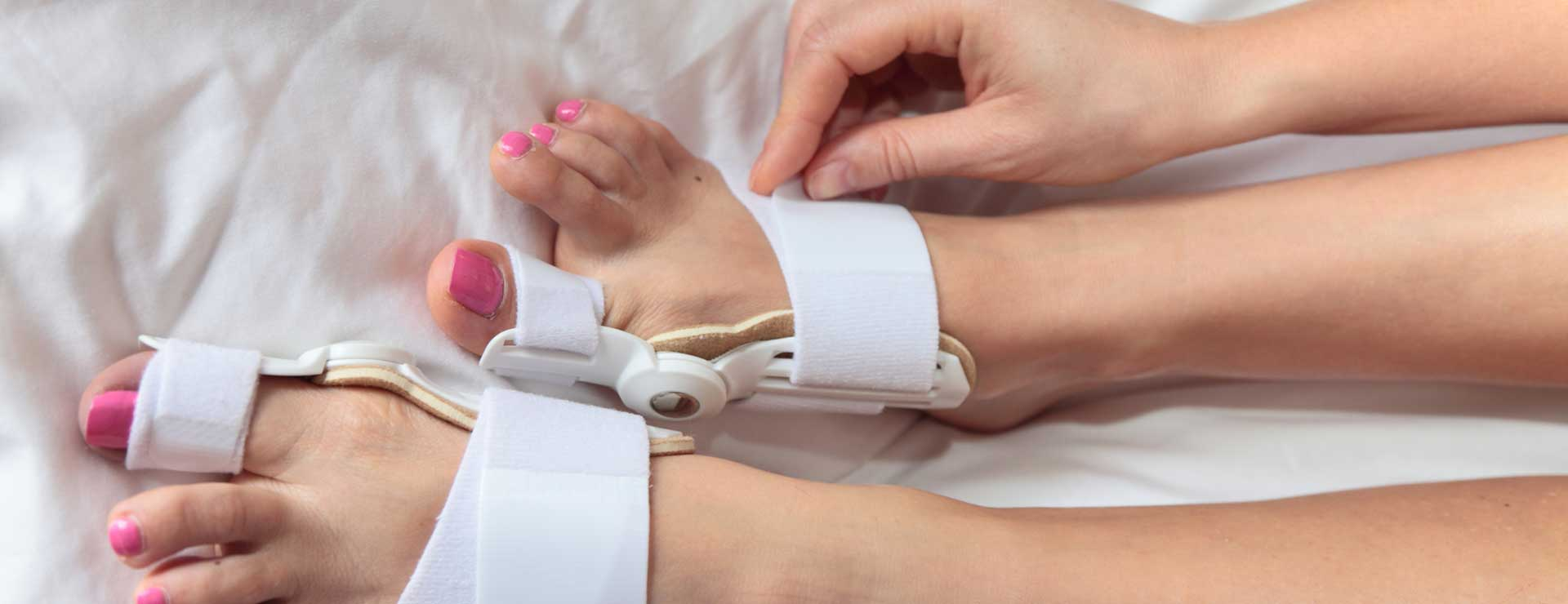 Woman wearing bunion aid splint
