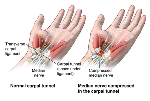 Illustration of a compressed median nerve in the carpal tunnel