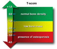 Illustration of T-score and what it means