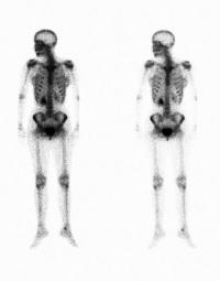 Computed Tomography (CT or CAT) Scan of the Bones | Johns Hopkins
