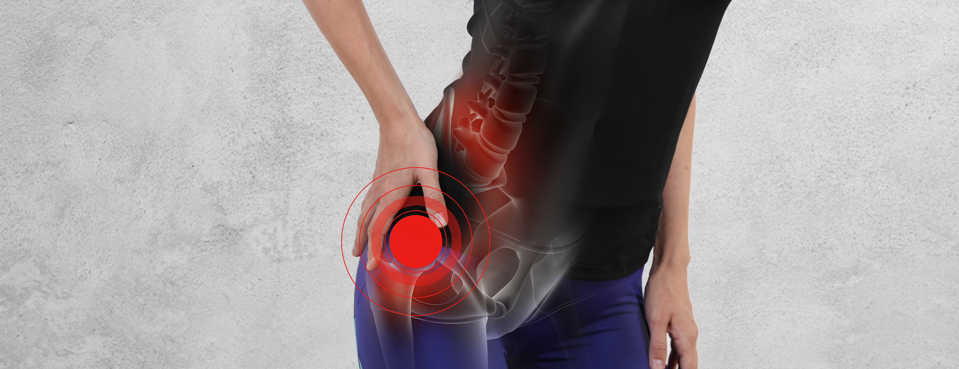 Women experiencing hip pain