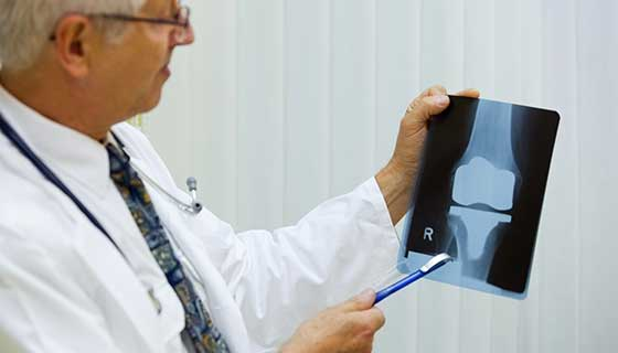 Doctor holding an X-ray of a knee joint after knee replacement surgery