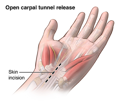 Illustration of the open carpal tunnel release procedure
