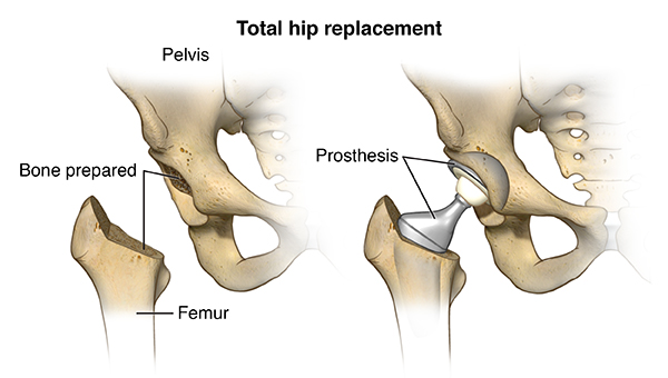 Diagram showing how a total hip replacement is performed. The prosthesis is inserted between the femur and the pelvis