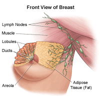 Difference breast nodes and cysts