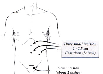 Diagram of laparoscopic incision, showing four small spots across the abdomen
