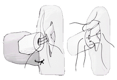 Illustration of microsurgical end to side intussusception technique