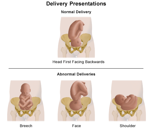 An illustration of normal and abnormal delivery presentations.