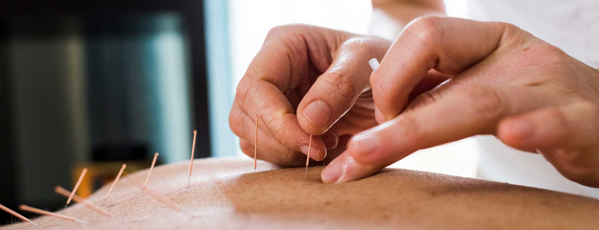 A practitioner performs acupuncture.
