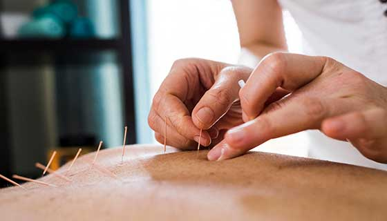 Acupuncture and Infertility Treatment