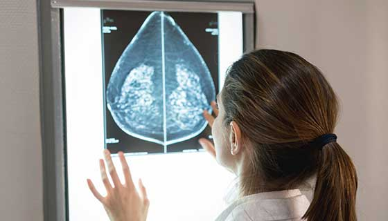 female gynocologist looking at a mammogram at the hospital