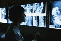 Picture of a physician viewing barium enema x-ray films