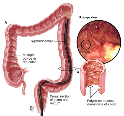 A: Appearance of FAP inside of the colon; B: endoscopic image of polyps; C: enlargement of polyps in the colon.