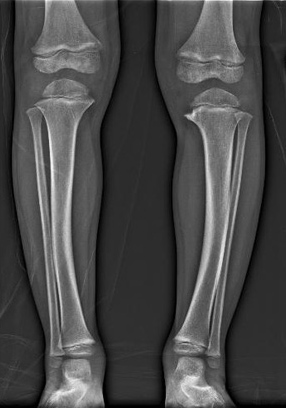 X-ray of a patient with a growth plate anomaly seen in people with Blount's disease.