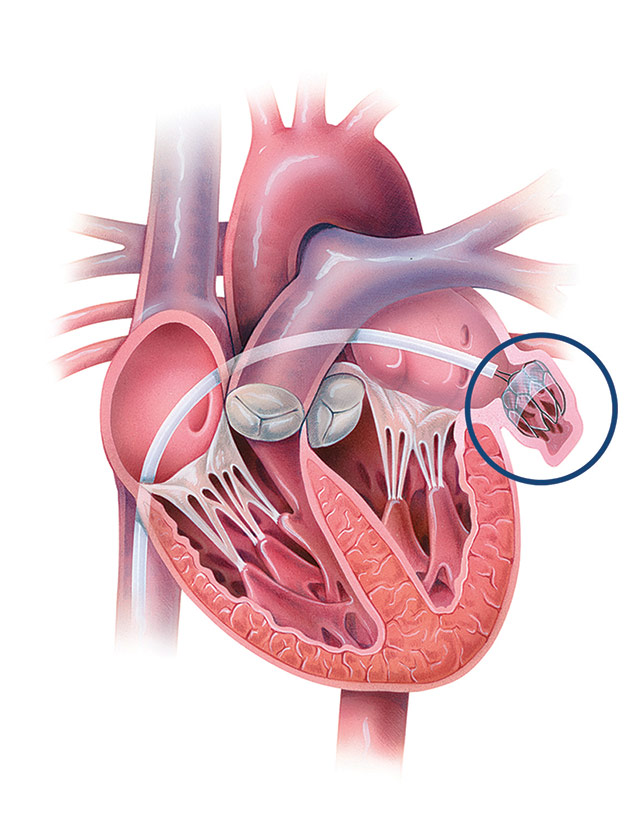 Diagram of the heart with the WATCHMAN device inserted into the left atrial appendage