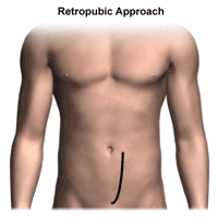 illustration of retropubic approach to prostatectomy