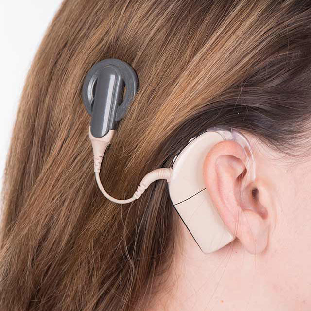 Cochlear implant shown behind a woman's ear