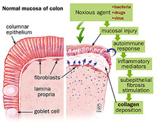 Mechanism of injury in collagenous colitis.