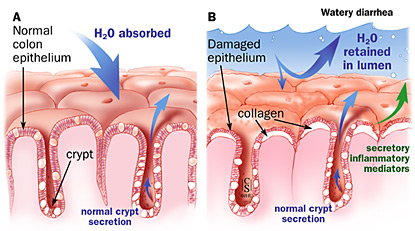 Pathogenesis of diarrhea in collagenous and lymphocytic colitis; A: normal epithelium; B: damaged epithelium.