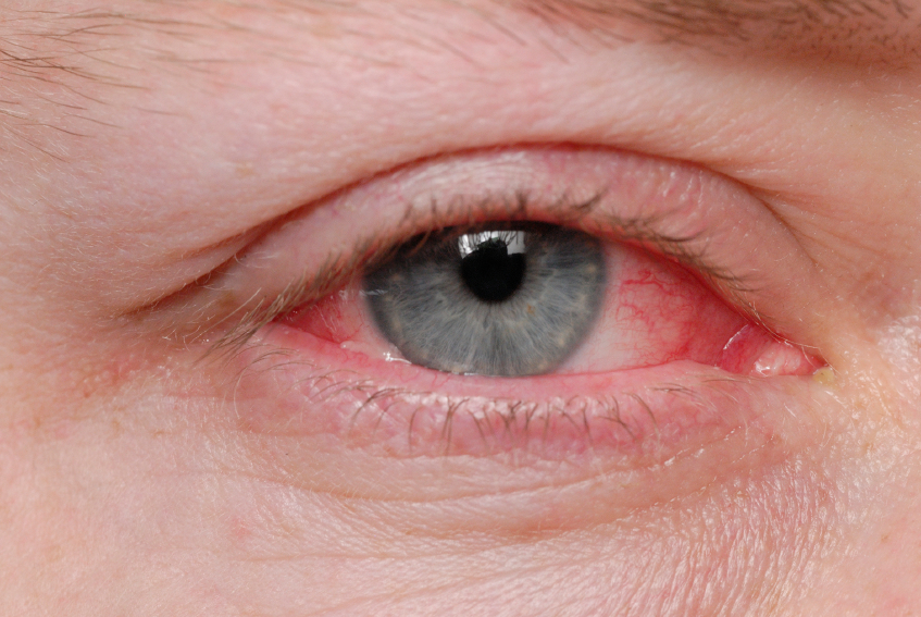 Eye infected with Pink Eye