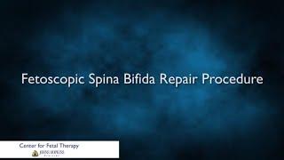Fetoscopic Spina Bifida Repair Procedure | Johns Hopkins
