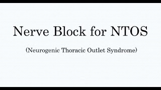Nerve Block Treatment for Thoracic Outlet Syndrome TOS
