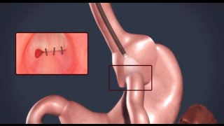 Transoral Gastric Outlet Reduction