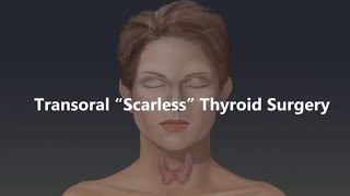 Transoral Scarless Thyroid Surgery Animation