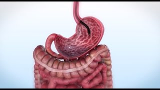What is Endoscopic Sleeve Gastroplasty and How Does it Work