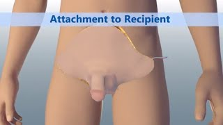 Worlds First Total Penile and Scrotum Transplant  Johns Hopkins Medicine