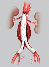 Fenestrated stent graft for abdominal aortic aneurysm