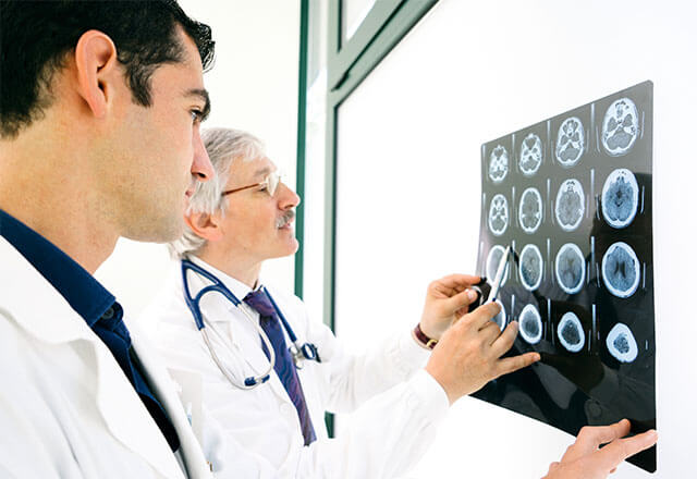doctors looking at brain scan