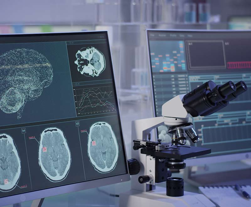 Microscope and computer screen with brain tumor scans